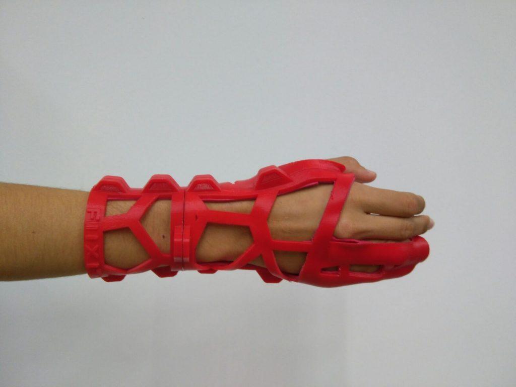 férula 3D fractura quinto metacarpiano