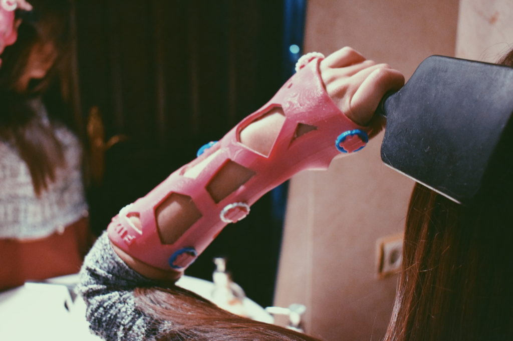 escayola problemas vigilar dedos roto brazo pierna alternativa ferula 3d impresion 3d
