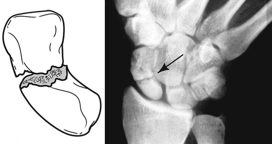 Ilustración   Radiografía de una fractura en la parte media del escafoides